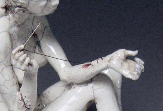 worried. broke, stitch - cassiecarnage | ello